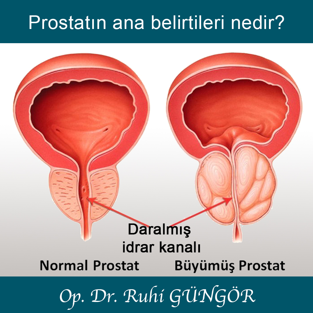 Erkeklerde prostat. Olası sorunlar