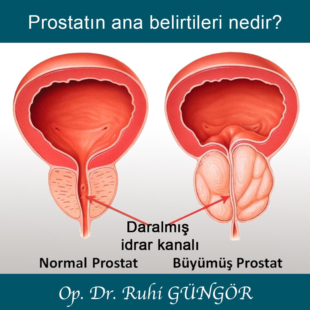 prostat1.jpg