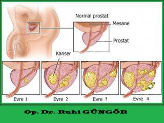 prostat bitkisel çözüm