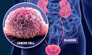 Meshane tümörü tedavisi
