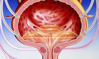Mesane tümörü neden olur?